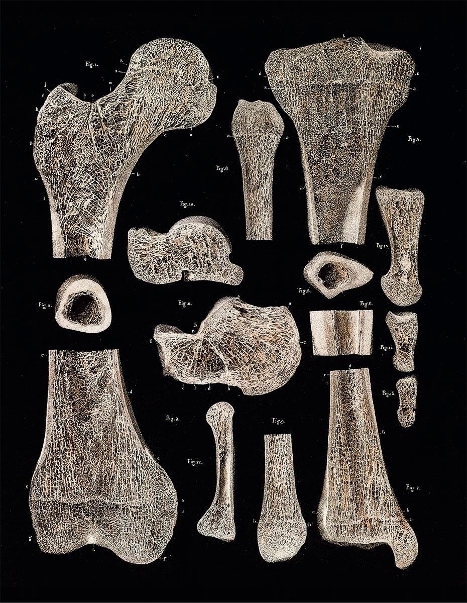 Der Anatom Bourgery untersuchte die Zusammenhänge im menschlichen Knochengerüst, indem er es in seine einzelnen Teile zerlegte. Die Methode wurde von Viollet-le-Duc für die Analyse der mittelalterlichen Architektur adaptiert. Gleichzeitig diente die Betrachtung des Oberschenkelknochens Culmann für die Entwicklung der grafischen Statik.